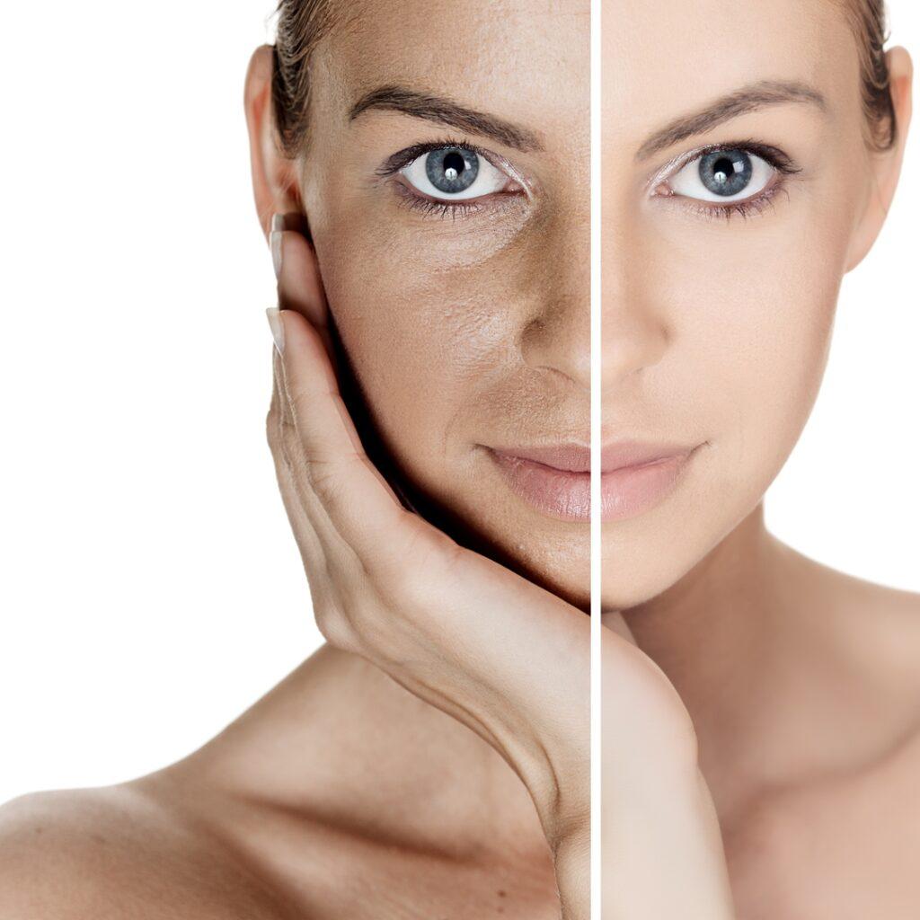 Plasma pen skin rejuvenation